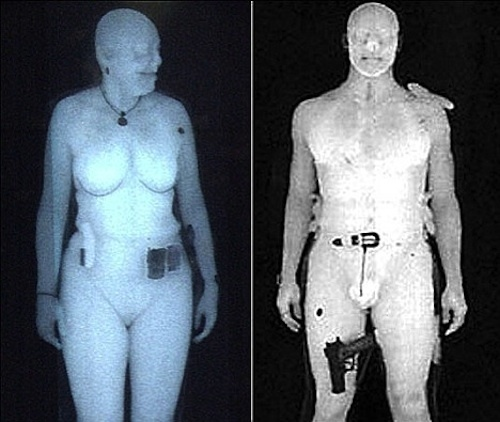 Naked xray pictures — photo 4
