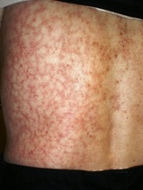 What Is Toasted Skin Syndrome?
