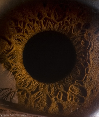 The Human Eye Looks Like a Crater